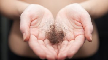 Can Hair Regrow After the Hair Falls Out
