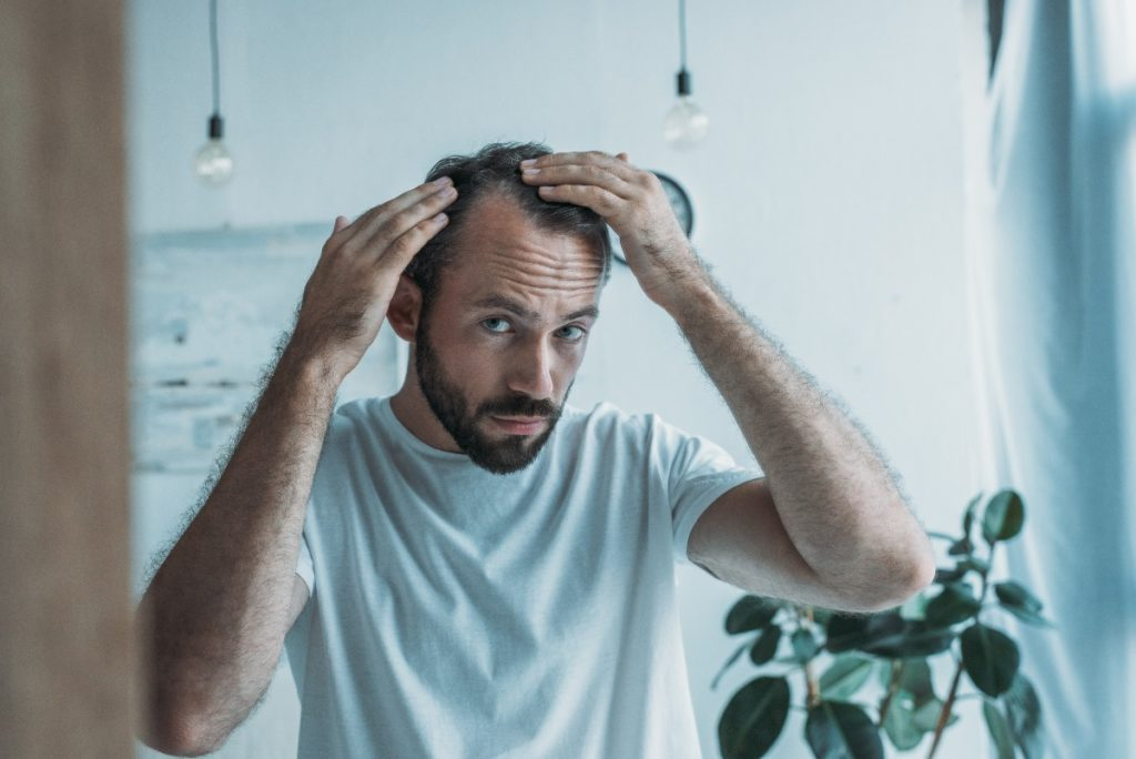 Mature Hairline: What Is It And How To Prevent It