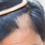 Can Depression Lead To Hair Loss?