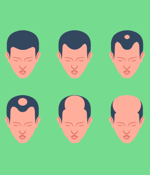 5.Gradual Thinning On Top Of The Head